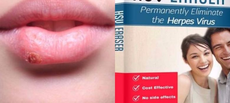 Herpes Erased Review